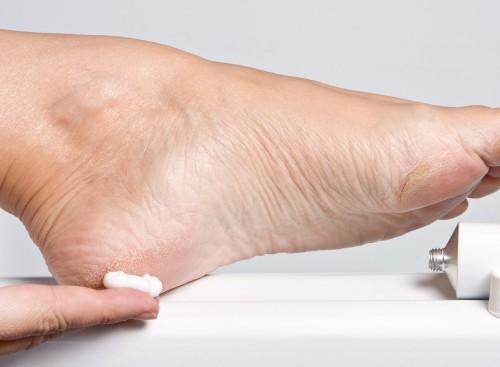 Трещины и мозоли на ногах